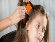 أفضل الطرق الطبيعية للتخلص من قمل الشعر