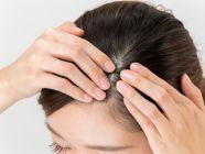 وصفات لتكثيف شعر مقدمة الرأس، جربيها