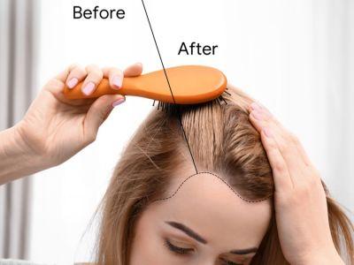 إنبات الشعر وتكثيفه، طرق ووصفات طبيعية