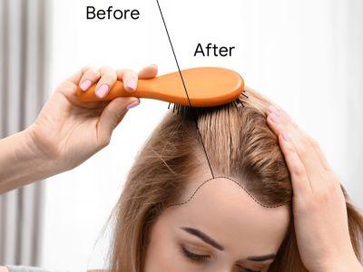 كل ما تحتاجين معرفته عن زراعة الشعر