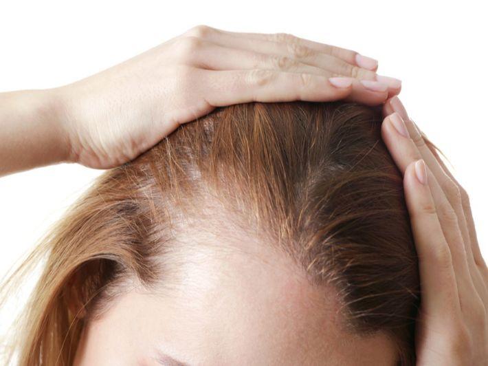صلع الشعر: الوصفات المتاحة ونصائح