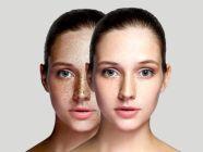 النمش في الوجه: أسبابه وأنواعه وطرق التخلص منه