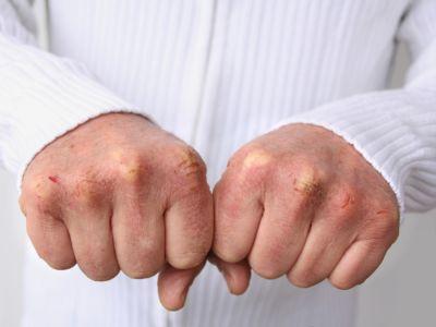 تشقق اليدين: الأسباب والحلول وأهم نصائح الوقاية