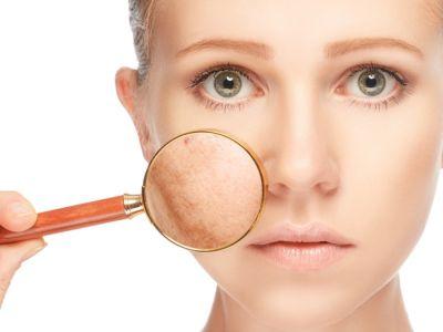 تصبغات الجلد: الأسباب وطرق العلاج