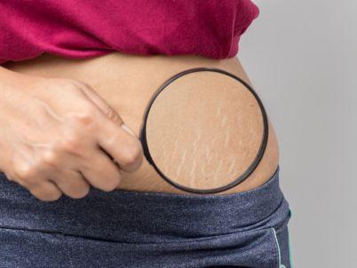 كيف تتخلصين من تشققات الجلد؟