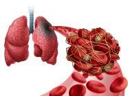 أعراض جلطة الرئة