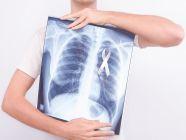 تعرف على أسباب الإصابة بسرطان الرئة