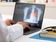 كيف يشخص الطبيب سرطان الرئة؟