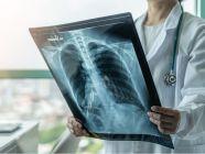 كيف يكون تشخيص الربو بالأشعة؟