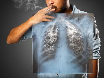 آثار التدخين على الرئتين