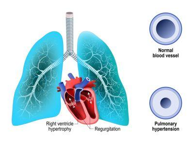 أعراض ارتفاع ضغط الدم الرئوي