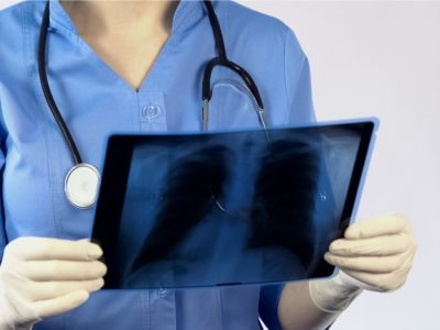 أمراض الرئة الناتجة عن غبار السيليكا