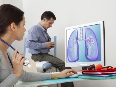 أهم المعلومات: العلاج المناعي لسرطان الرئة