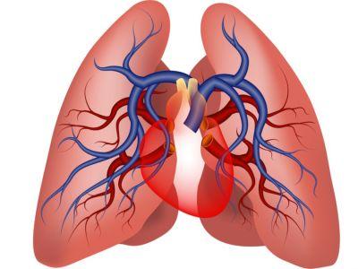 ارتفاع ضغط الدم الرئوي: الأعراض، الأسباب والعلاج