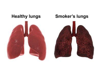 الفرق بين رئة المدخن وغير المدخن