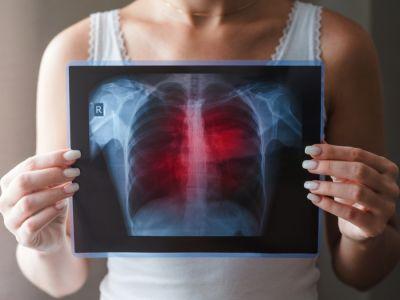 طرق تشخيص أمراض الرئة وأهم الفحوصات