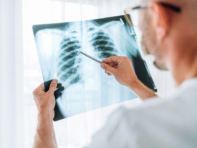 كيف يكون علاج الالتهاب الرئوي