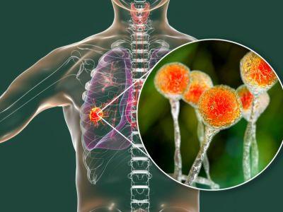 ما هو خراج الرئة؟
