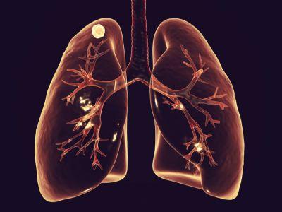 ما هي عقيدات الرئة؟ وهل يمكن أن تكون سرطانية؟
