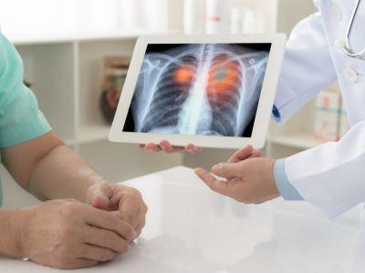 هل هناك تحاليل دم تكشف عن سرطان الرئة؟