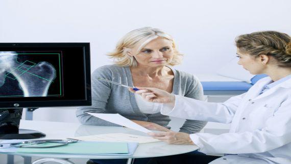 النساء أكثر عرضة للإصابة بهشاشة العظام مقارنة بالرجال بمعدل 4 مرات